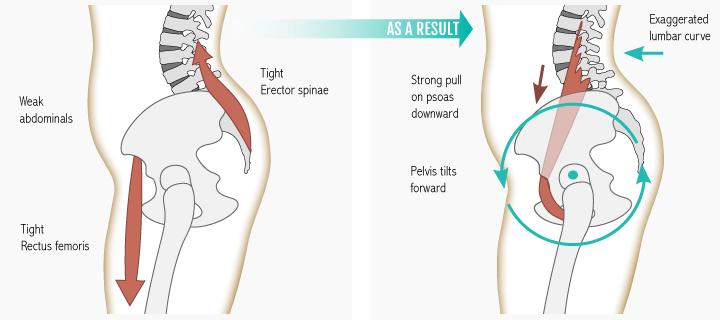 muscle imbalance Anterior Pelvic Tilt