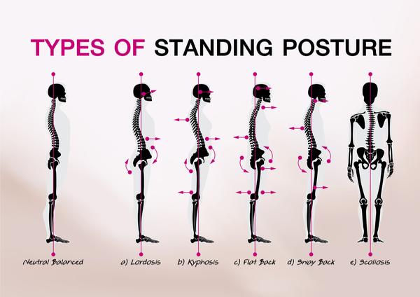 bad posture types